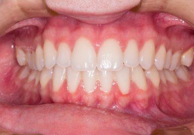 איך להלבין שיניים באופן טבעי